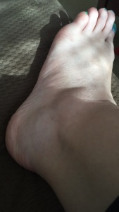 This is not how my ankle normally looks.